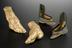 A56882, Plaster model of left foot deformed by Chinese practice of foot-binding, property of Sir James Cantlie,