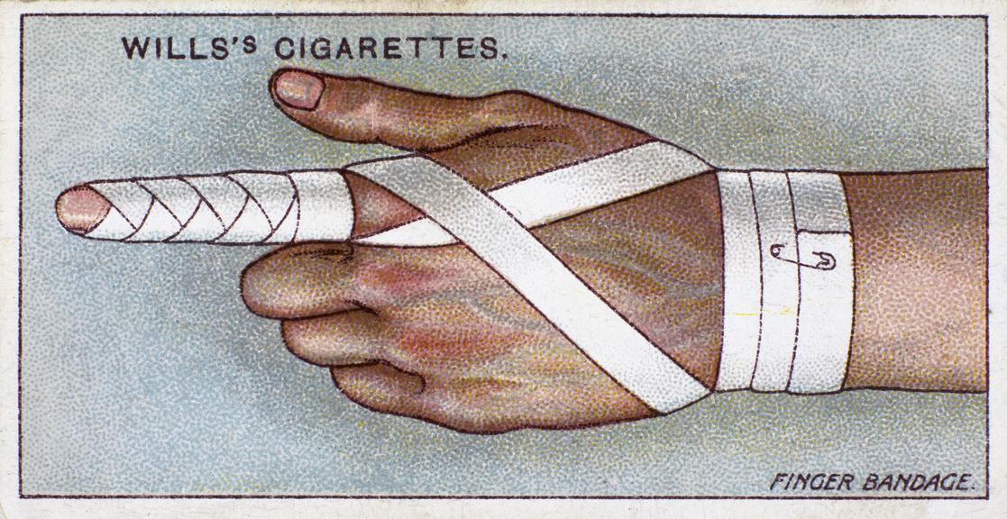 Finger Bandage. One of set of 50 cigarette cards, 'First Aid' issued by W.D. & H.O. Wills, Bristol and London (1913), ,