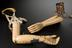 1999-528: Left above elbow prosthesis with a wooden socket connected to a wooden forearm. Metal mechanical hand with
