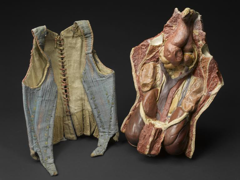 Group shot: (A12302) Corset, late 19th century and (A61203) Coloured plaster model of woman's trunk revealing internal